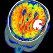 Brain Tumour, 3d-mri Scan Art Print by Pasieka