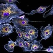 Lung Cells, Fluorescent Micrograph Art Print