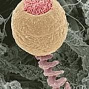 Vorticella Protozoan, Sem Art Print by Steve Gschmeissner