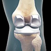 Knee Replacement Art Print