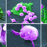 Cancer Cell Death Sequence, Sem Art Print by Science Source