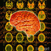 Brain Composite Art Print