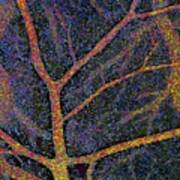 Brain Tissue Blood Supply Art Print
