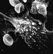 Cancer Cell Death, Sem 1 Of 6 Art Print