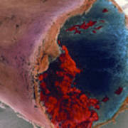 Coloured Sem Of A Blood Clot In Coronary Artery Art Print