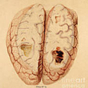Extravasated Blood, Brain Art Print