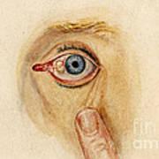 Globular Cyst On Eye, Illustration Art Print