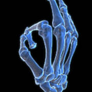 Hand Gesture Art Print by MedicalRF.com