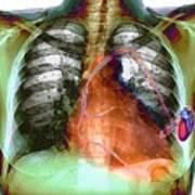 Heart Pacemaker, X-ray Art Print