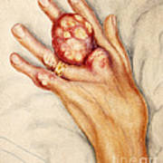 Left Hand With Tophus From Chronic Gout Art Print