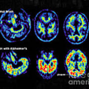 Normal And Alzheimer Brains, Pet Scans Art Print
