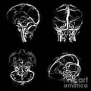 Normal Intracranial Venous System, 3d Ct Art Print