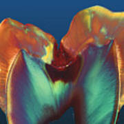 Polarised Lm Of A Molar Tooth Showing Decay Art Print by Volker Steger