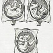 Pregnancy Complications, Illustration Art Print