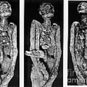 Processes Of Mummification Art Print