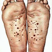 Psoriasis Of Feet, Illustration Art Print