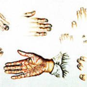 Psoriasis, Syphilis, Onychomycosis Art Print