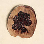Renal Blood Clot, Kidney, Illustration Art Print