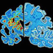 Sectioned Brains: Alzheimer's Disease Vs Normal Art Print