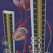Standards For Hypertension, Illustration Art Print