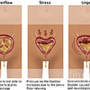 Types Of Incontinence Art Print