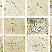 Various Bacilli Observed By Robert Koch Art Print