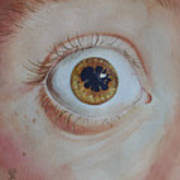 What's The Matter With Uveitis? Art Print