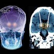 Parkinson's Disease Brain Stimulation Electrodes Art Print