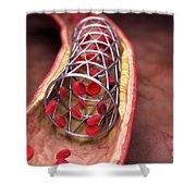Arterial Stent Shower Curtain