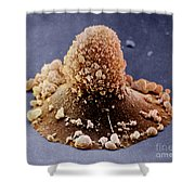 Carcinoma Cell Apoptosis Shower Curtain