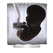 Fetus In Utero Week 15 Shower Curtain
