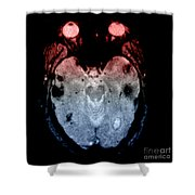 Mri Of Amyloid Angiopathy Shower Curtain