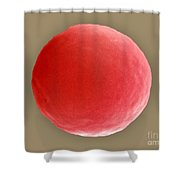 Red Blood Cell In Hypotonic Solution Shower Curtain