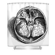 Vesalius: Olfactory Organs Shower Curtain