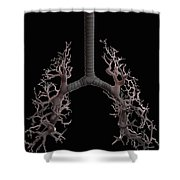 Bronchial Branches Shower Curtain