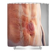 Ventral Hernia Shower Curtain