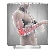 Tennis Elbow Shower Curtain