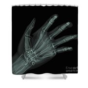 Bones Of The Hand Shower Curtain