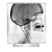 Deep Brain Stimulating Electrodes, X-ray Shower Curtain