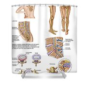 Medical Chart Showing The Signs Shower Curtain