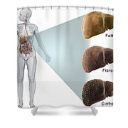 Stages Of Liver Disease Shower Curtain