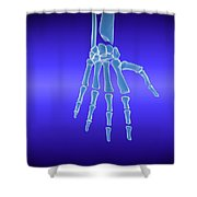 X-ray View Of Human Hand Shower Curtain
