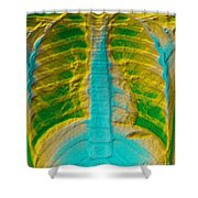 A Normal Chest X-ray Shower Curtain