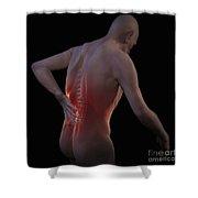 Back Pain Shower Curtain