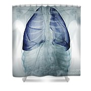 Lungs Within The Chest Shower Curtain