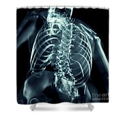 Bones Of The Upper Body Shower Curtain