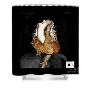 3d Ct Of Normal Heart Shower Curtain