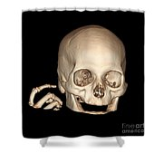 3d Ct Reconstruction Of Head And Hand Shower Curtain