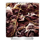 Candida And Epithelial Cells Shower Curtain