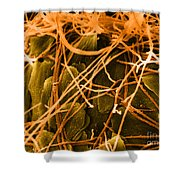 Trichophyton Fungus, Sem Shower Curtain